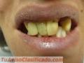 protesis-dental-por-odontologos-matriculados-privados-en-paternal-caba-1.JPG