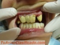 protesis-dental-por-odontologos-matriculados-privados-en-paternal-caba-2.JPG