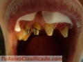 protesis-dental-por-odontologos-matriculados-privados-en-paternal-caba-3.JPG