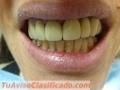 protesis-dental-por-odontologos-matriculados-privados-en-paternal-caba-4.JPG